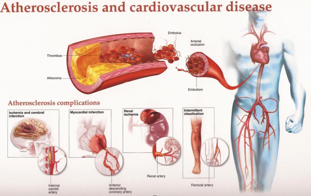 boala vasculara articulara)