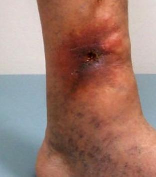 ulcere vasculare ale piciorului