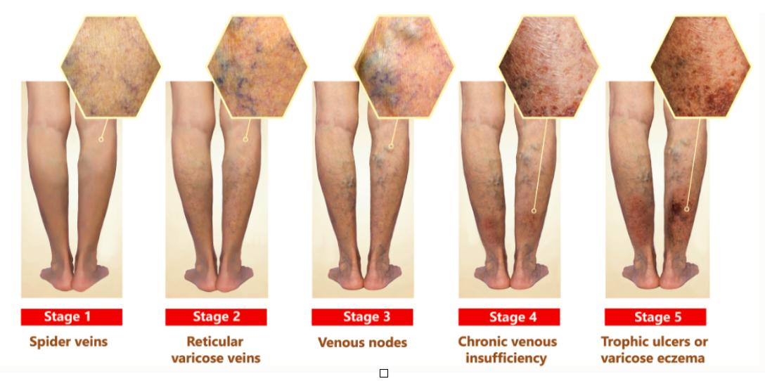 stadii insuficienta venoasa